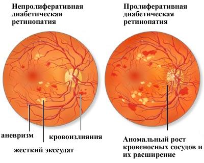 Повышение давление в глазном дне